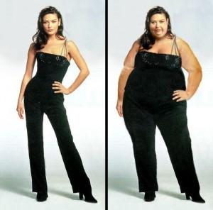 Gambar Obesitas